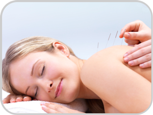 acupuncture: woman with needles